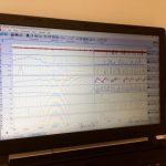 alcuni dei parametri raccolti con uso di aghi_ elettrodi