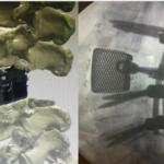 protesi vertebra 3d