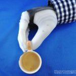 Hand prosthesis - Photo 3
