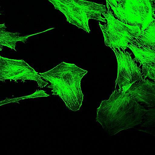 Tumori solidi, trovata la proteina che li aiuta a nutrirsi